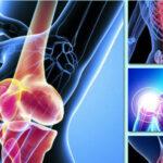 Diagnóstico tardío: reto para combatir enfermedades reumáticas