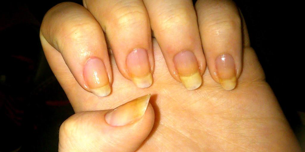El tratamiento de la gripe de las uñas en los pies
