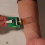 """Vendaje """"inteligente"""" detecta formación de llagas en pacientes acostados"""