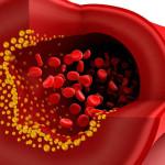 """EEUU: una nueva droga promete reducir el """"colesterol malo"""""""