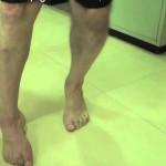 Crean un dispositivo que ayudará a caminar a pacientes con ictus