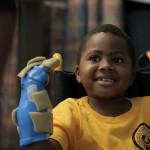 EEUU: niño de ocho años el primero en recibir un trasplante de manos