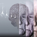 Alzheimer: análisis de biomarcadores ayudaría a predecir enfermedad