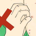 5 datos que debes conocer sobre el herpes zóster