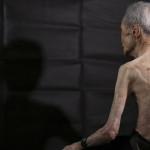 Nagasaki: secuelas de la bomba atómica en un sobreviviente
