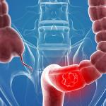 Salud: Aumenta 150 % los casos de cáncer de colon en Perú