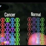 Descubren que el ADN 'basura' determina la evolución del cáncer