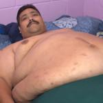 México: Sin percances operan al hombre más obeso del mundo