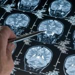 Alzhéimer: Estudio señala que podría estar provocado por hongos