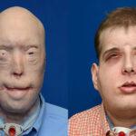 EEUU: Llevan a cabo el trasplante de cara más complejo hasta la fecha
