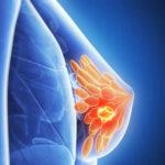 Proyecto colombiano contra cáncer de seno gana beca internacional