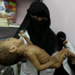 Siria: Muere menor por falta de comida y medicinas en Madaya