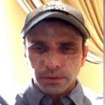 EEUU: Capriles en tratamiento médico en EEUU descarta que sufra cáncer