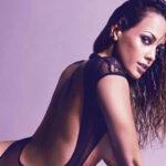 Miss Perú: Afección a la piel dejaría fuera a Milett Figueroa