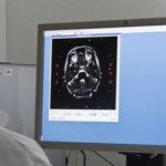 Desarrollan nueva molécula contra los cánceres de cabeza y cuello