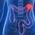 Suiza: Prueba sanguínea detecta de manera precoz cáncer de colon