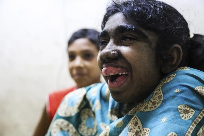 GRA013. DACCA, 28/05/2016.- Bithi Akthar, de 12 años, sonríe en una habitación del Hospital Universitario Bangabandhu Sheikh Mujib de Dacca, el 25 de mayo de 2016. La familia de Bithi acudió a curanderos o a la religión para intentar acabar con el manto de pelo que cubre a su niña, pero no fue hasta su llegada a un hospital capitalino en Bangladesh donde se vislumbró la posibilidad de curarla de lo que parece un probable caso del síndrome del hombre lobo. A Bithi le cuesta pronunciar las palabras. La timidez y unas enormes encías superiores que cubren completamente sus dientes lo dificultan, aunque está contenta porque su cara empieza a perder el vello gracias a una primera sesión de láser. EFE/Igor G. Barbero