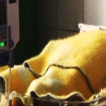 Pasco: dos menores mueren por neumonía debido a bajas temperaturas