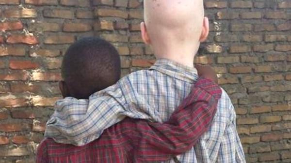 albinos5