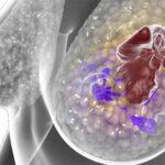 Cáncer en mama: Hallan fármaco que reduce su expansión agresiva