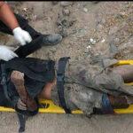 Arequipa: perros vagos arrancan oreja a indigente en una quebrada