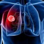 Atezolizumab aumenta supervivencia global de cáncer en pulmón