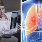 China: Científicos modificarán ADN de genes para tratar cáncer al pulmón