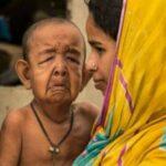 """Bangladesh: Niño de 4 años aparenta 80 como """"Benjamin Button"""""""