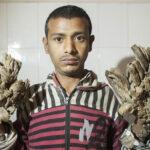 Bangladesh: Extraño hombre-árbol al fin tiene nuevas manos  (VIDEOS)