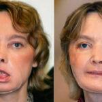 Francia: Murió Isabelle Dinoire, la primera persona en someterse a trasplante de cara