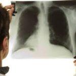 OMS: 1.8 millones de personas murieron por tuberculosis el 2015