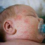 Algunas alergias alimentarias de los niños se desarrollan en la gestación