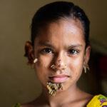 """Bangladesh: Médicos diagnostican a la primera """"niña árbol"""" del mundo"""