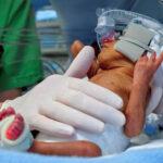 Primeras experiencias de bebés prematuros moldean respuesta del cerebro