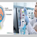 EEUU: Estudio vincula riesgos de trastornos vasculares con el Alzheimer