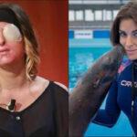Italia: Modelodesfigurada con ácido por exnovio mostró su rostro en TV (VIDEO)