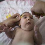Ecuador: Confirman primeros tres casos de malformaciones por zika en bebés