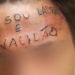 """Recaudan dinero para borrar tatuaje de """"Soy un ladrón"""" a presunto ratero"""