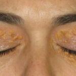 Excesiva exposición solar aumenta el riesgo de tumores en los párpados