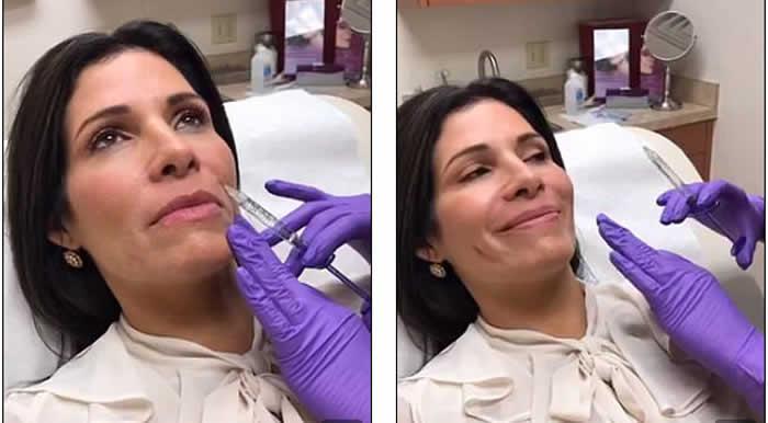 Latina de Texas se hizo nueve cirugías para parecerse a Melania Trump