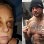 Reino Unido: Boxeador celoso desfigura a su mujer y ahora dice ser la víctima