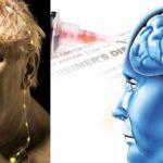 """Investigadores crean """"marcapasos cerebral"""" para aliviar a pacientes con alzhéimer"""