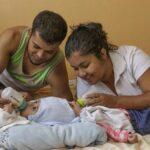 Costa Rica: Médicos logran separar a siameses unidos por la cabeza