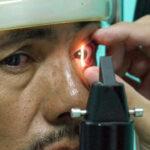 Especialistas indican que falta educación para diagnóstico oportuno del glaucoma