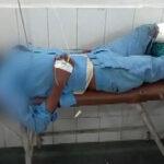 Piden investigar caso de pierna amputada usada como almohada