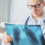 La OMS pide un compromiso político y social para poner fin a la tuberculosis