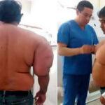 Buzo artesanal peruano sigue con cuerpo deformado por exceso de nitrógeno en su sangre