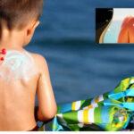 Excesiva exposición a luz solar influye en alta incidencia de cáncer de piel