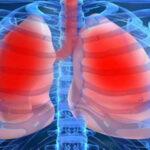 Señalan que hipertensión pulmonar se agrava por diagnósticos tardíos