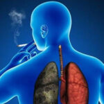 Nuevo tratamiento triplica supervivencia en cáncer de pulmón